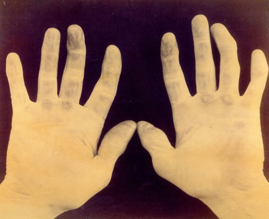Hands of Douglas Allison, showing results of baseball playing,  Feb. 12, 1889.